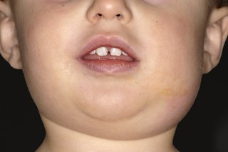 Picture of a child with mumps