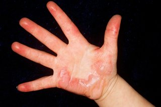 Picture of a burn on the hand