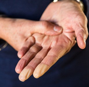 Women are nine times more likely than men to suffer from Raynaud